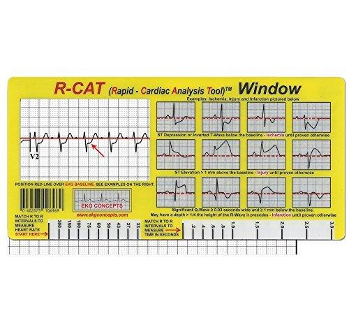 R-CAT EKG Window 2nd Edition