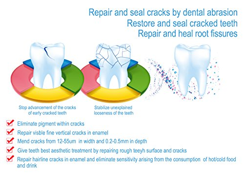 Recover Teeth Crack, Root Damage, Sensitive Pain, Teeth