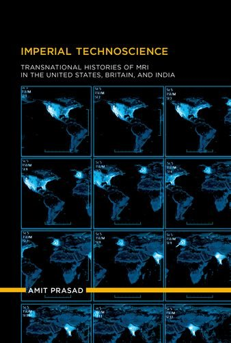 imperial-technoscience-transnational-histories-of-mri-in-the-united-states-britain-and-india-inside-