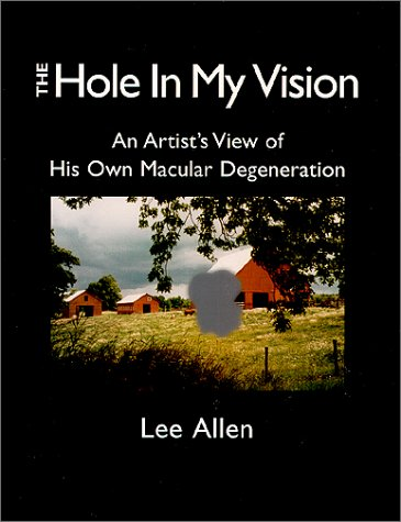 The Hole in My Vision