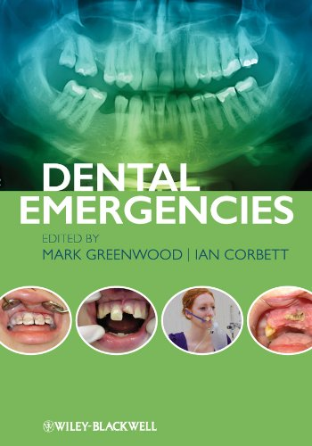 Download Dental Emergencies Pdf