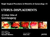 Uterus-Displacement Vol. 15 : A Colour Atlas of Cervicopexy, Arun, Nagrath, 9350257629