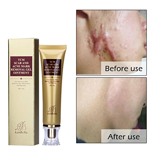 GARYOB Acne Scar Removal Cream Skin Repair Face Cream For Burns Cuts Operation Stretch Mark Remover Acne Scar Treatment