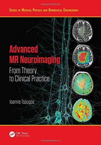 Advanced MR Neuroimaging: From Theory to Clinical Practice (Series in Medical Physics and Biomedical Engineering)