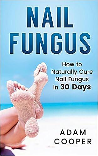Nail Fungus: How to Naturally Cure Nail Fungus in 30 Days: Natural ...