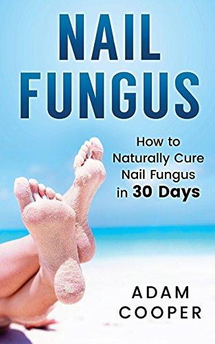 Nail Fungus: How to Naturally Cure Nail Fungus in 30