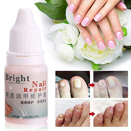 Fungal Nail Treatment Gel Whitening Toe Care Essence Fungus Removal Liquid 1PC 10ml by Zerone (Image #4)