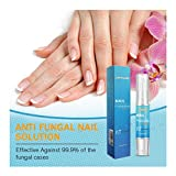 Iusun Nail Care Regen Repair Effective Fragile Bio-Pen 1/2PCS Herbal Formula Safe And Less Painful No Need Cover Apply To Grey Nails&Care Nails&Bright Nails (Blue-1pc)