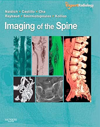 Imaging of the Spine: Expert Radiology Series - Kindle