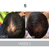 Biotin Vitamin Conditioner For Hair Growth, Aloe