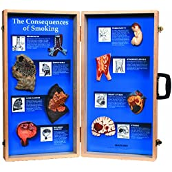 "HEALTH EDCO W43047 The Consequences of Smoking 3D Display, 27"" Length x 28"" Height Opened"