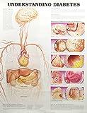 Understanding Diabetes Anatomical Chart, Anatomical Chart Company Staff, 1587793881