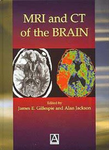 Download MRI and CT of the Brain ebook