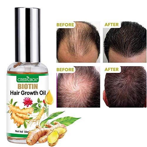 Hair Growth Oil,2021 Hair Growth Serum,Hair Growth,Stops Hair Loss, Hair Thinning Treatment, Hair Growth Treatment,Essential Oil for Women Men-50ml
