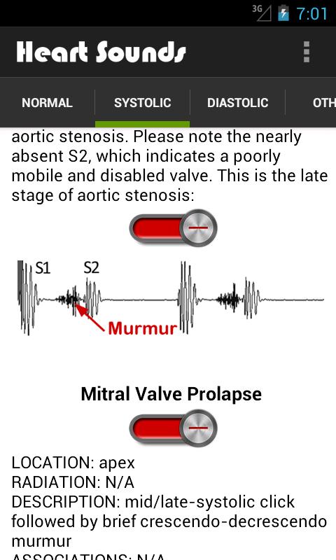 Heart Sounds (+ Lung Sounds): Amazon.com.br: Amazon Appstore