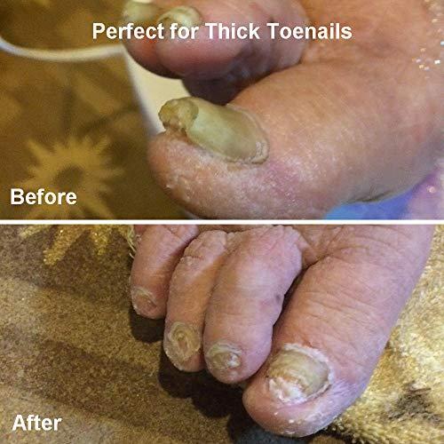 Large Toenail Clipper Cutter For Thick Toe Nails Men Seniors Elderly Stainless S