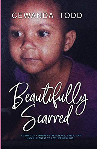 Pdf Parenting Beautifully Scarred: A Story of a Mother's Resilience, Faith, and Unwillingness to Let Her Baby Die.