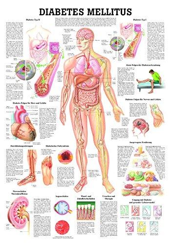 Anatomische Lehrtafel 'Diabetes Mellitus', LxB 100x70 cm 70 cm x 100 cm Ruediger Anatomie TA78
