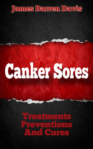 Canker Sores: Treatments, Preventions, and Cures