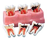 Practicon 4112158 Caries Progression Model