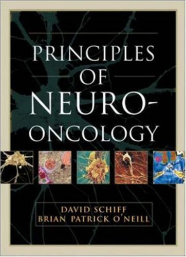 Principles and Practice of Neuro-Oncology