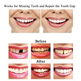 Temporary Tooth Repair Kit-Thermal Beads for