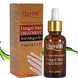Nail Fungus Oil Nail Care,Nail Fungus Treatments,Fungus Stop,Nail Care Treatment of Anti-Fungal Solution,Effective against nail fungus 30ml