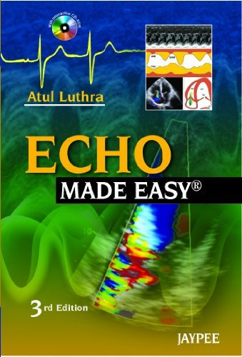 Echo Made Easy by A. Luthra (2010-11-26)