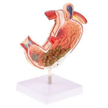 que es la enfermedad ulcera gastrica