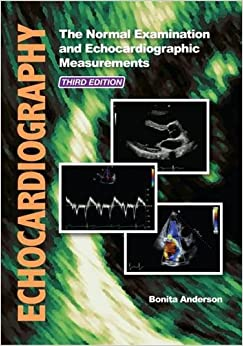 Echocardiography Board Review PDF