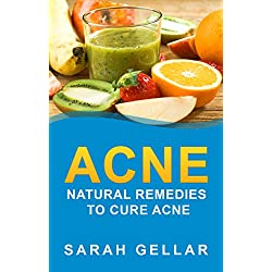 ACNE: Natural Remedies To Cure Acne (Natural Cures, Skin Health, Skin, Natural Health) (Acne Solution Book 1)