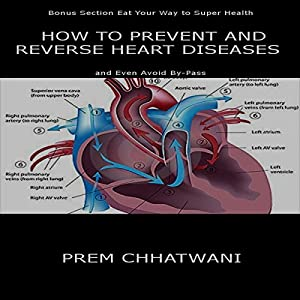 How to Prevent and Reverse Heart Diseases - And Even Avoid By-Pass Audiobook