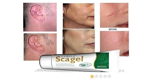 Amazon com : Scagel Scar Gel Reducer Post Surgery Keloid Stretch