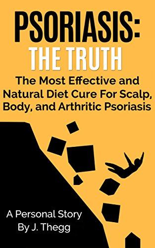 Psoriasis: The Truth-The Most Effective and Natural Diet Cure for Scalp, Body, and Arthritic Psoriasis (Psoriasis treatment psoriasis shampoo psoriasis cream psoriasis - System Therapy Scalp