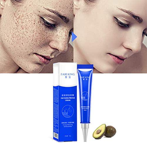 ColorfulLaVie Effective Whitening Freckle Cream Moisturizing Remove Melasma Acne Spots Treatment Pigment Melanin Whitening Skin Care