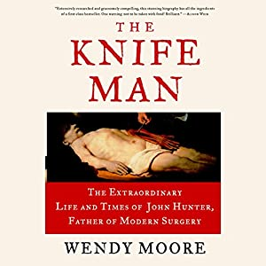 The Knife Man Audiobook