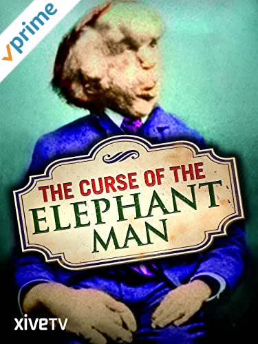 The Curse of the Elephant Man
