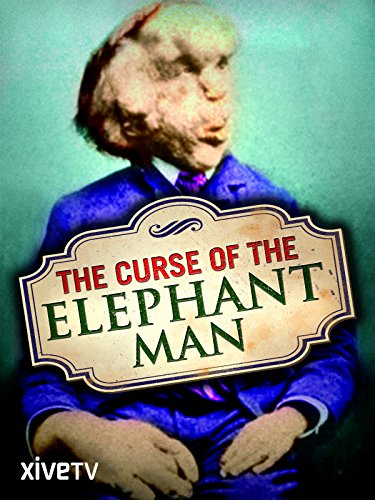 The Curse of the Elephant Man