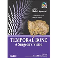 Temporal Bone: A Surgeon'S Vision With Dvd Rom