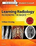 Learning Radiology: Recognizing the Basics, 3e