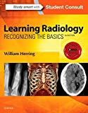 Learning Radiology, Recognizing the Basics, 3rd Edition
