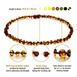 Best Baltic Amber Teething Necklaces - Natural Baltic Amber Teething Necklace For Babies Review