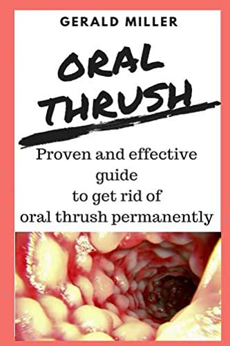 oral thrush: : oral thrush, thrush treatment, treatment adult, candida medicine for medication, infant probiotic prevention, natural cure (how to treat oral thrush Book 1)