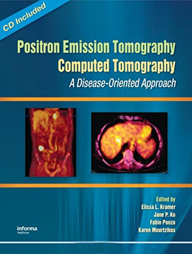 Positron Emission Tomography-Computed Tomography: A Disease-Oriented Approach Pdf