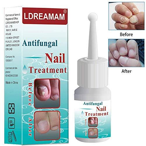 Fungus Stop,Nail Fungus Treatment,Anti fungal Nail Solution,Nail Care Treatment of Anti-Fungal Solution,Effective Against Nail Fungus,Restores Toenail Fungus,Clear
