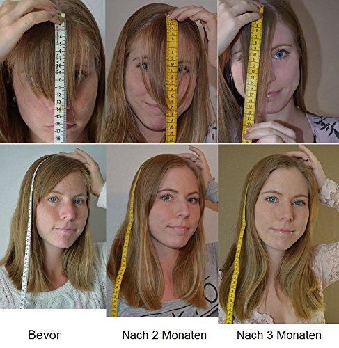 Hair Jazz Lotion Beschleunigt Das Wachstum Ihrer Haare 200ml