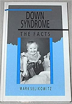 Down Syndrome (Facts)
