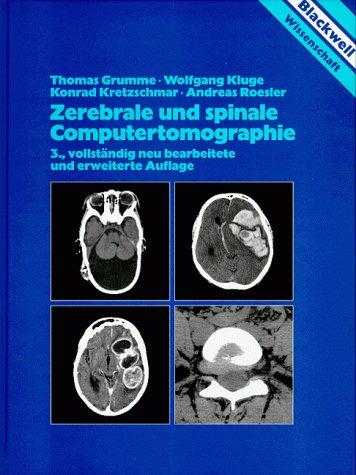 Zerebrale und spinale Computertomographie