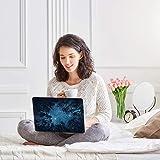 iDonzon MacBook Pro 15 inch Case