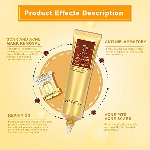 Buy black head removal cream